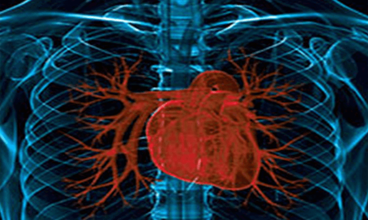 x-ray image of the heart