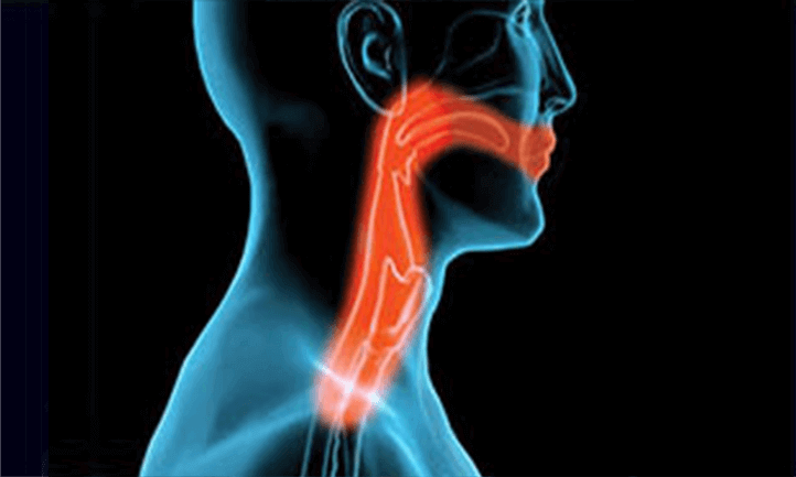 x-ray image of the throat area